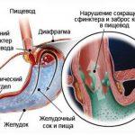 Posledstviya-bulimii